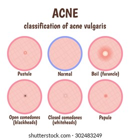 problem skin with pustules, acne, open blackheads and closed comedones whiteheads