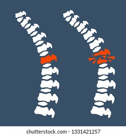 Problems with the spine. White human bones. Sore place in back. A crack in the intervertebral disc. Poor posture. Pain and trauma. Medical care. Vertebra x-ray.  Cartoon flat illustration