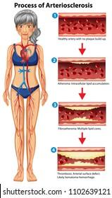 Process of arteriosclerosis medical illustration