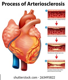 Process of Arteriosclerosis on a white background