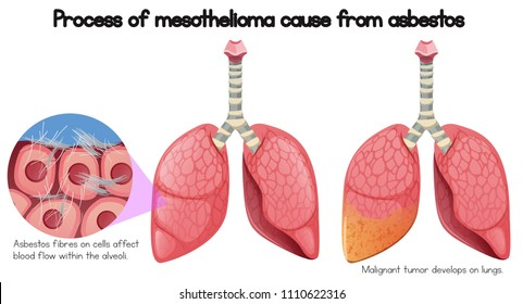 Process of mesothelioma cause of asbestos illustration