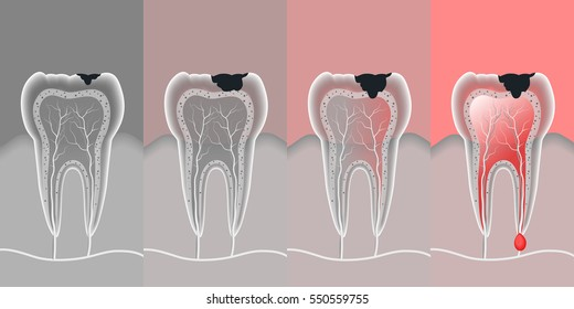 process teeth problem with vector