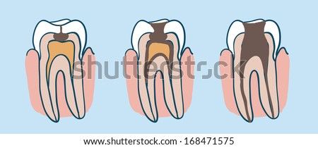 Tooth Decay Diagram - Wiring Diagram G11