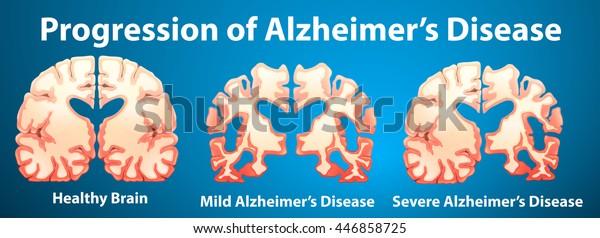 Progression of Alzheimer's disease on blue background illustration