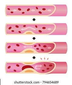 Progression of arteriosclerosis illustration (No text)