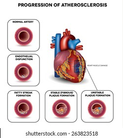 Progression of Atherosclerosis till heart attack. Heart muscle damage due to blood clot. Very detailed illustration of fatty streak formation, white blood cells infiltration, blood clot formation etc.