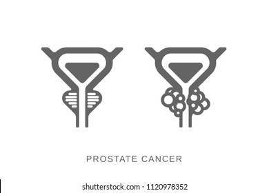 Prostate gland icon. Prostate cancer icon. Vector flat silhouette scheme of prostate, bladder and cancer tumor isolated on light background.