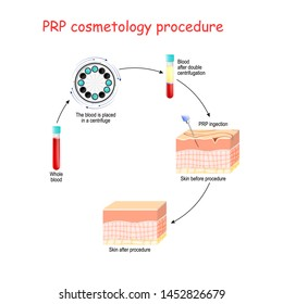 PRP cosmetology procedure. test tubes and syringe with blood and platelet-rich plasma. Vector diagram for educational, medical, biological and science use