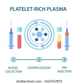 PRP procedure steps vector infographics. Test tubes and syringes filled with blood before and after separation of platelets in the centrifuge. Platelet-rich plasma regenerative medicine concept.