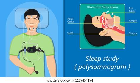 PSG sleep study test apnea diagnose Periodic limb movement disorder positive airway pressure CPAP restless leg syndrome Epworth Sleepiness Scale