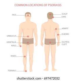 psoriasis illness diagram, human body skin disease,
