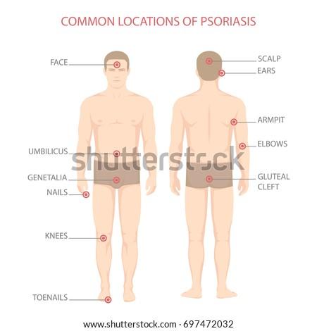 Prime Psoriasis Illness Diagram Human Body Skin Stock Vektorgrafik Wiring 101 Eumquscobadownsetwise Assnl