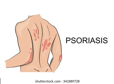 psoriatic rash. Dermatology. Allergic reaction, redness, itching, peeling skin