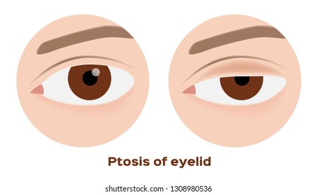 ptosis of eyelid . eye sickness anatomy