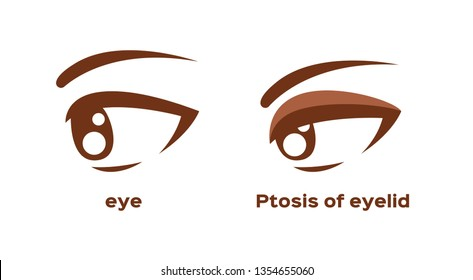 ptosis of eyelid . eye sickness anatomy vector