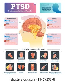 PTSD vector illustration. Labeled anatomical mental disorder causes scheme. Compared healthy and problematic brain differences set. Explained psychiatry diagnosis after disasters, abuse and accidents.