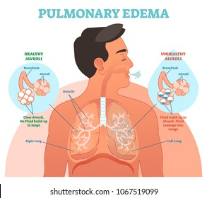 Pulmonary edema, lung problem vector illustration diagram with bronchi and fluid leakage in alveoli. Chest cross section human body scheme. Health care information.