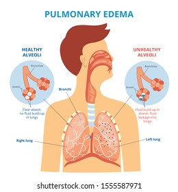 Pulmonary edema - respiratory lung disease infographic with flat cartoon man drawing showing his internal organs - healthy and unhealthy alveoli, medicine and health isolated vector illustration