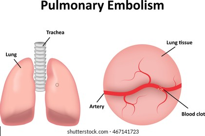 Pulmonary Embolism Diagram