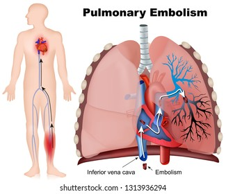 Pulmonary  embolism medical vector illustration with description on white background