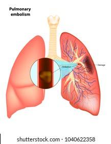 Pulmonary  embolism. Vector illustration