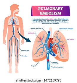 Pulmonary embolism vector illustration. Labeled lung blood blockage disease scheme. Anatomical isolated closeup with pulmonary arteries condition. Educational diagram with clots embolus brake process