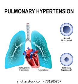 Pulmonary hypertension is an increased blood pressure within the arteries of the lungs. Cross section of the Normal, and narrowing of blood vessels. Humans heart with hypertrophy of Right ventricle