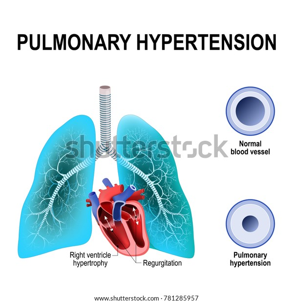 Hipertensión arterial pulmonar pulmonar