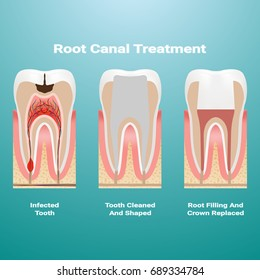 Pulpitis. Root Canal Therapy. Infected Pulp Is Removed From The Tooth And The Space Occupied By It Is Cleaned And Filled With A Gutta Percha Isolated On A Background. Vector Illustration. Stomatology