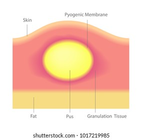 pus and acne in skin vector