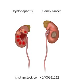 Pyelonephritis comparison with cancer. Tumor, infection, infected. Realistic anatomy vector illustration.