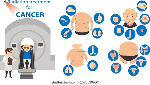Radiation therapy forTreatment Cancer infographic. Vector illustration