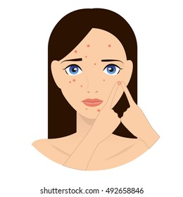 Rash on the face illustration. Pimples on the face. Dermatology illustration. Acne illustration. Allergy. The girl with the rash on the face. Girl with pimples on her face illustration.