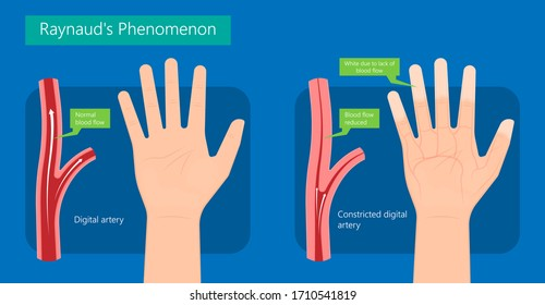 Raynaud's disease erythematosus Scleroderma buerger circulation paleness cold Injury numb vasospasm Carpal tunnel
