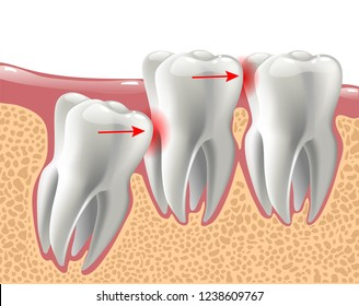 realistic 3D teeth, and wisdom tooth problems