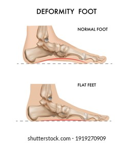 Realistic bones anatomy foot arch deformation composition with profile views of footstep with editable text captions vector illustration