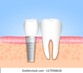 Realistic dental implant structure with all parts: crown, abutment, screw. Healthy teeth and dental implant. Dentistry. Implantation of human teeth. Vector illustration
