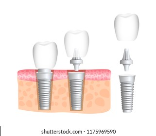 Realistic dental implant structure with all parts: crown, abutment, screw. Dentistry. Implantation of human teeth. Vector illustration