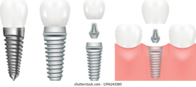 Realistic dental implant structure with all parts crown, abutment, screw. Dentistry. Implantation of human teeth. Vector illustration, eps 10