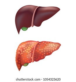 Realistic Detailed 3d Liver Human Internal Organs Healthy Normal and Unhealthy Fatty Isolated on White Background. Vector illustration
