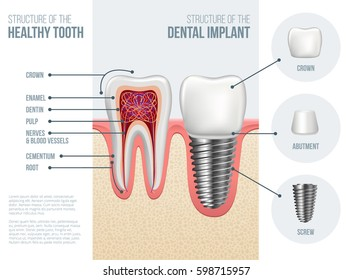 Realistic healthy tooth and structure, dental implant structure with all parts: crown, abutment, screw. Vector illustration