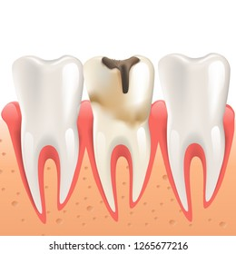 Realistic Illustration Enamel Caries in 3d Vector Dental Periodontitis. Tooth Infection Among Healthy Teeth Human Jaw. Necessary Treatment Diseased Tooth. Isolated on White Background