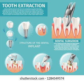 Realistic Illustration Infographic Dental Surgeron. 3d Banner Vector Image Procedures for Tooth Extraction. Structure of the Dental Implant, Crown, Abutment, Screw. Caries Treatment with Dental Drill