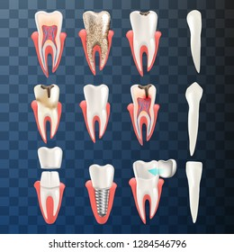Realistic Illustration Set Teeth Different Problem. Vector Image 3d Visualization Dental Problem Tooth Sick Root, Dirty, Caries, Strong Caries, Premolar, Canines, Incisors, Tooth Implant, Dental Crown
