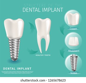 Realistic Image Structure of the Dental Implant. 3d Banner Vector Illustration Midicine Orthodontic Dental Implant Installation Process Crown, Abutment, Screw. Healthy Tooth. Green Background