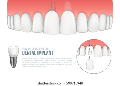 Realistic upper jaw with healthy tooth and dental implant. Scheme with installation of dental implant with all parts: crown, abutment, screw. Vector illustration with place for your text