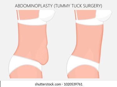 Realistic Vector illustration. Abdominoplasty, tummy tuck plastic surgery in woman.Side view. For advertising of cosmetic plastic procedures, stomach shunting, diet; for medical publications. EPS 8.