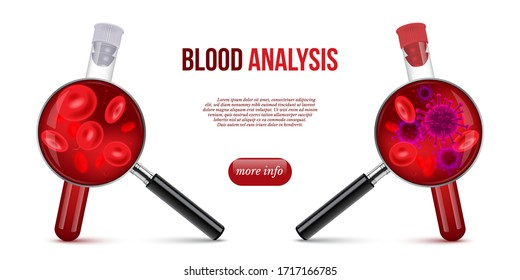 Realistic vector illustration of blood analysis. Test tube with red blood, magnifying glass, normal cells and bacteria or virus. Hematology concept for laboratory banner, medical clinic landing page