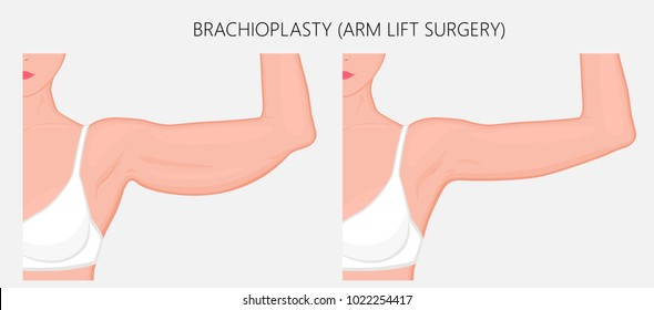 Realistic Vector illustration. Brachioplasty or Upper-Arm Lift plastic surgery in woman. Front view. For advertising of esthetic cosmetic procedures after weight loss; for medical publications. EPS 8.