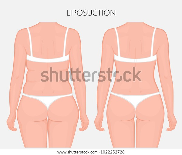 realistic vector illustration  liposuction, waist, hips, buttocks and  thighs plastic surgery in